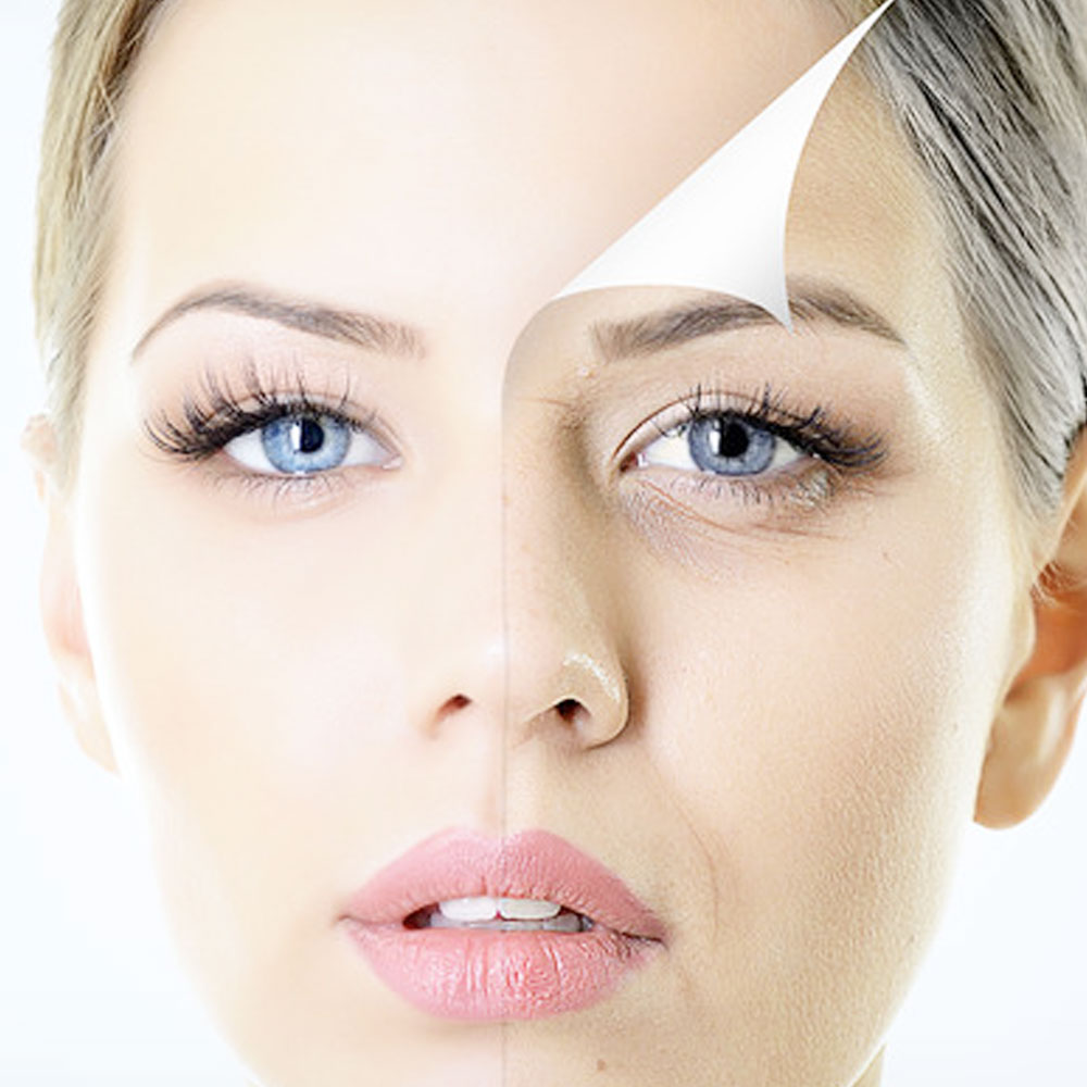 eDS® Skin Rejuvenation Hereford