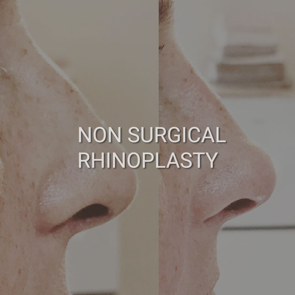 Non Surgical Rhinoplasty Worcester
